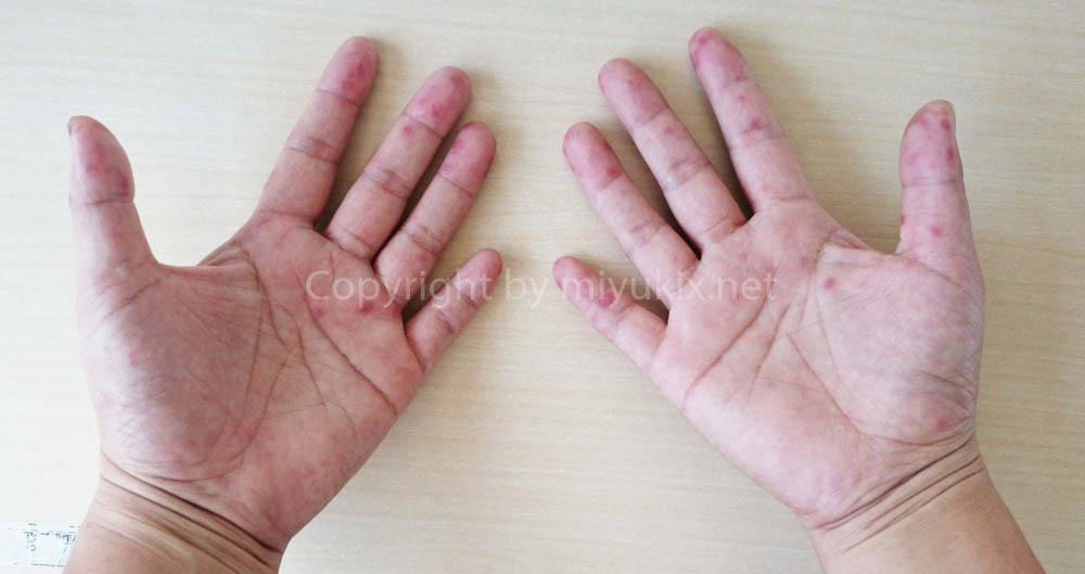 大人の手足口病