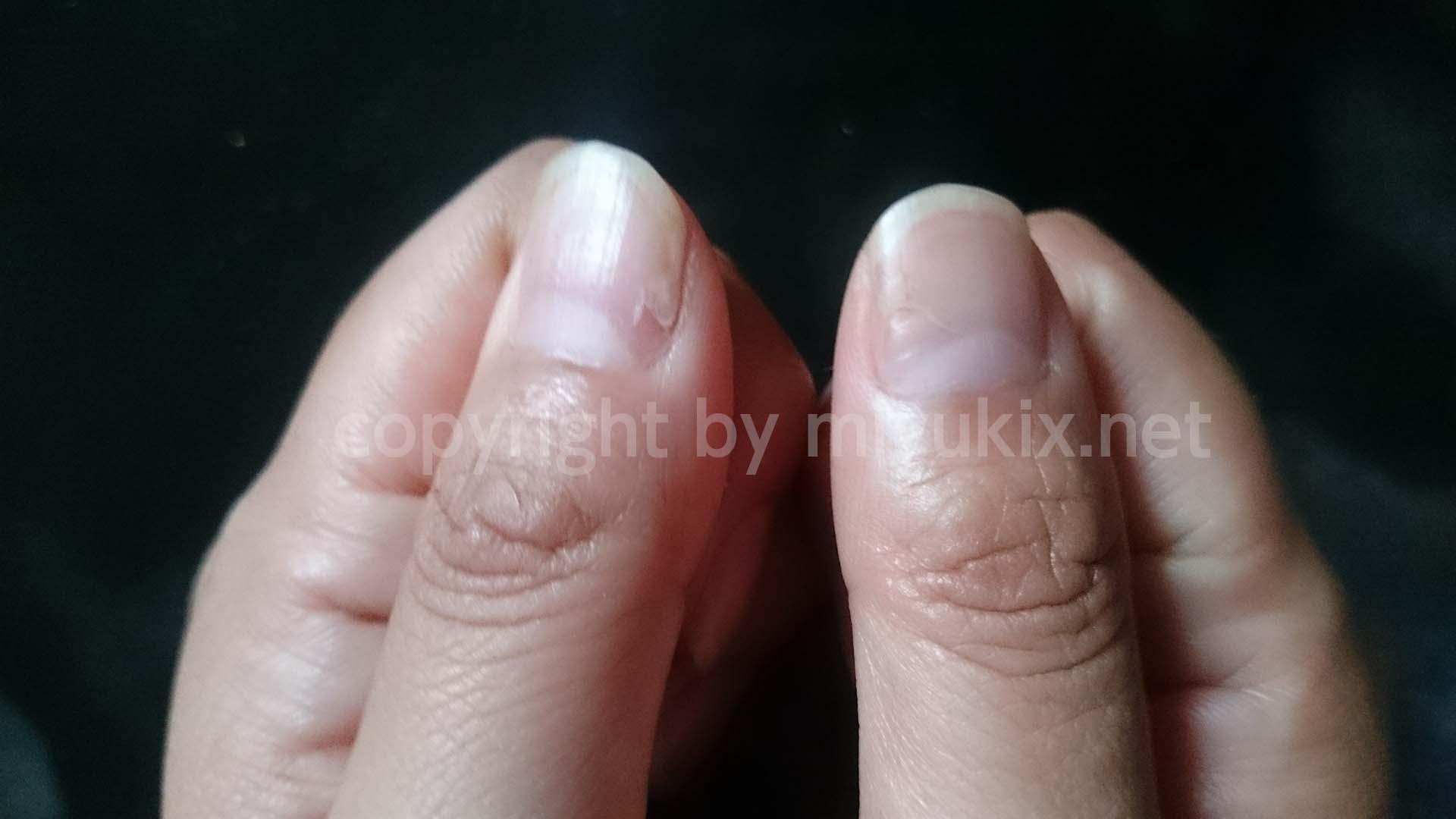 手足口病で爪が根元からはがれる